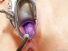 Мастурбация на приеме у гинеколога
